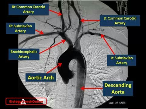 Last week's #MysteryAnatomy structure was the #Aortic #Arch. The aortic arch curves (like a handle) across the superior surface of the #heart. [It receives #oxygenated #blood from the #left #ventricle.] The arch continues downward as the #descending #aorta to deliver oxygenated blood to the #vital #organs (except the #brain) and the lower limbs. Three #arteries originate at the aortic arch to service the upper limbs and the head and neck: the left #subclavian #artery delivers blood to the…