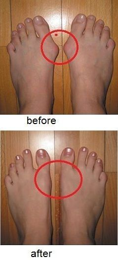 How to Prevent and Treat Bunions                                                                                                                                                                                 More