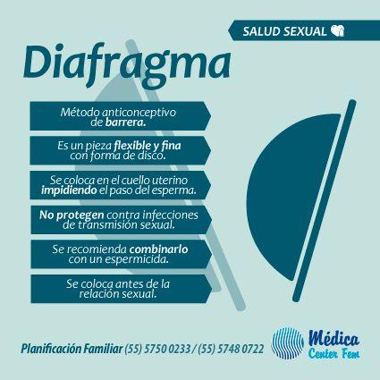 Métodos anticonceptivos. El diafragma pertenece a los métodos de barrera, su efectividad aumenta si usas también un espermicida. http://www.medicacenterfem.com/metodos-anticonceptivos/otro/diafragma/