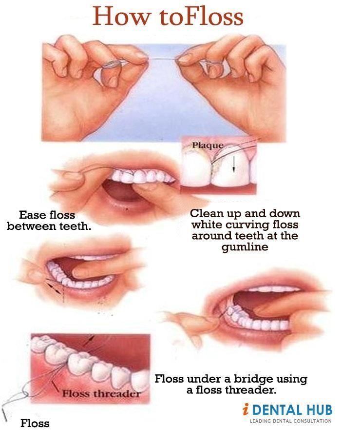 Nonchalant Dental Implants Before And After Other Dentalimplantsbeforeafter Blackdentalhygienist Dental Flossing Dental Dental Floss