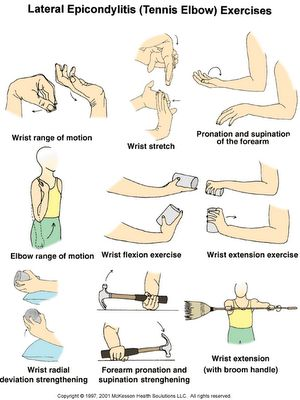 ELBOW PAIN: info & treatment. GOLFER'S ELBOW (pain on inside), TENNIS ELBOW (pain on outside). Due to many activities - baseball, javelin, football, bowling, weightlifting, gardening, housework. more http://www.pamf.org/teen/health/Sports/tenniselbow.html