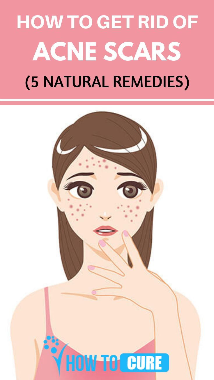 5 Natural Remedies To Get Rid Of Acne Scars – HowToCure