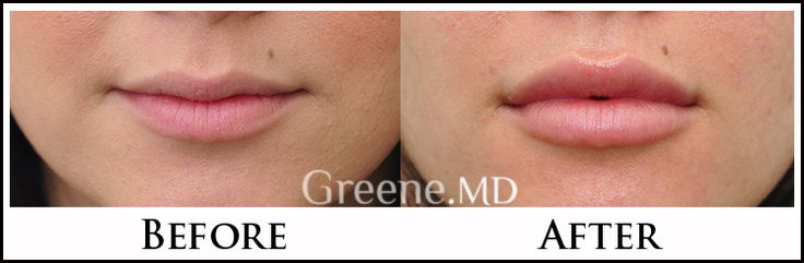 Dr. Greene focuses on natural lip augmentation to enhance not just the lip volume (size), but also definition. These lips look perfect!