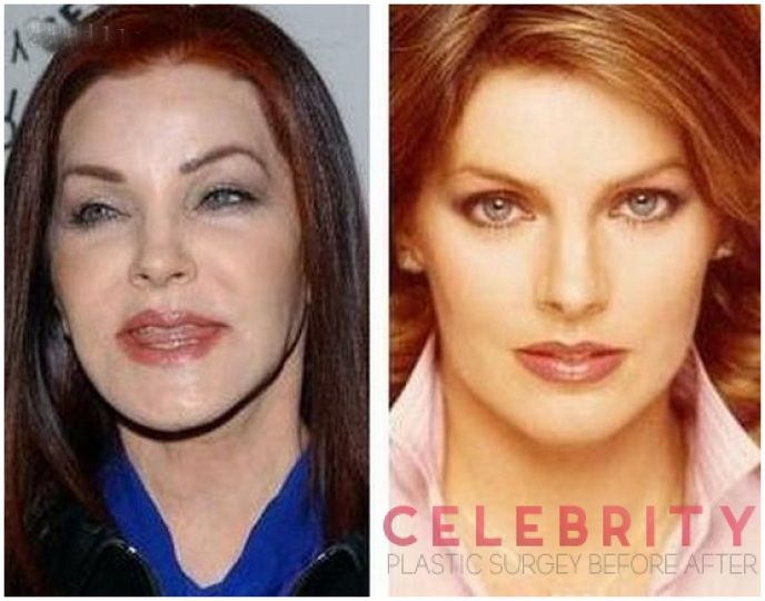 Priscilla Presley Has Lost Her Original Beauty Due To Bad Plastic Surgery Celebrity Plastic Surgery Bad Plastic Surgeries Plastic Surgery Beauty