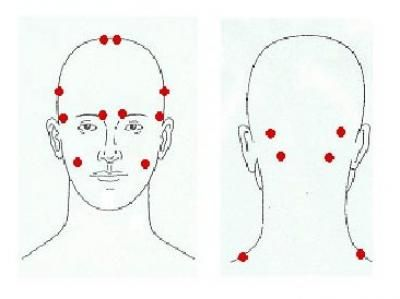 Botox injected in head 'trigger point' is proven to reduce ...