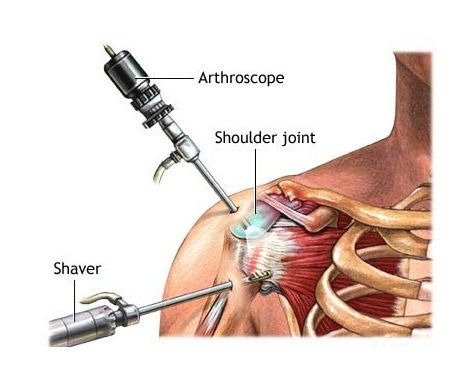 how to avoid arthritis in hips