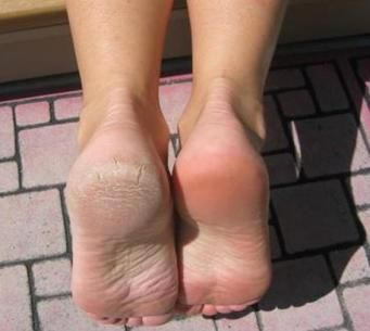 Effective Home Remedy for Sore, Cracked Feet Mix.  1/4 c Listerine (any kind but I like the blue), 1/4 c vinegar and 1/2 c of warm water. Soak feet for 10 minutes and when you take them out the dead skin will practically wipe off.