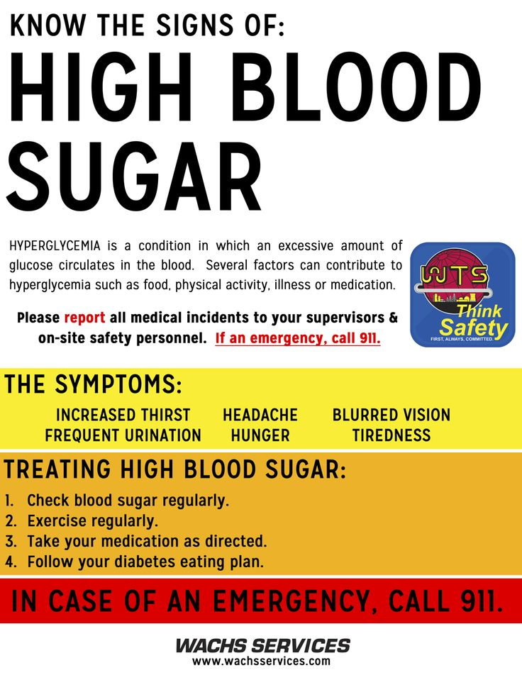 Sugar does not cause diabetes