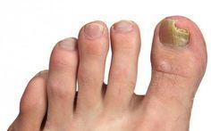 Tratamientos naturales para los hongos en las uñas de los pies