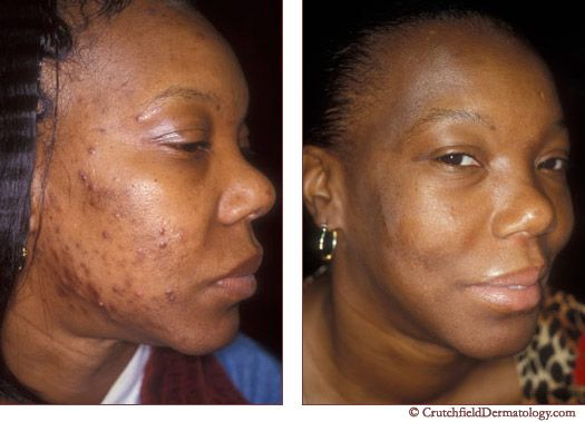 22 Best Best Acne Dermatologist In Eagan Mn Images On
