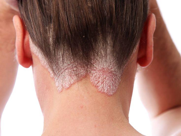 Psoriasi: i benefici del silicio organico. Il silicio organico è un minerale naturale particolarmente efficace nei casi di psoriasi: calma la pelle, attenua il prurito, diminuisce i focolai.