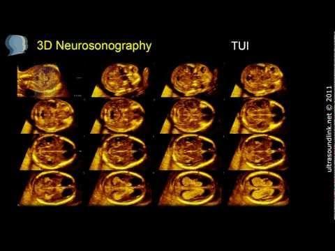 Fake Ultrasounds Fake Pregnancy Fake Baby Fake Sonograms ...