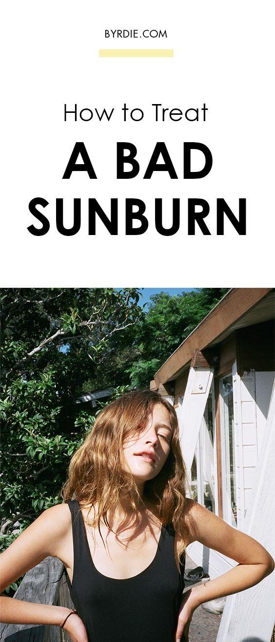 Bad Sunburn? Stop Panicking and Do This