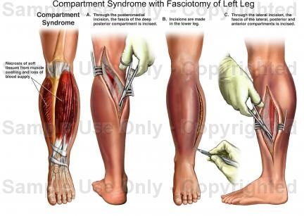 55 best images about compartment syndrome on pinterest | student, Skeleton