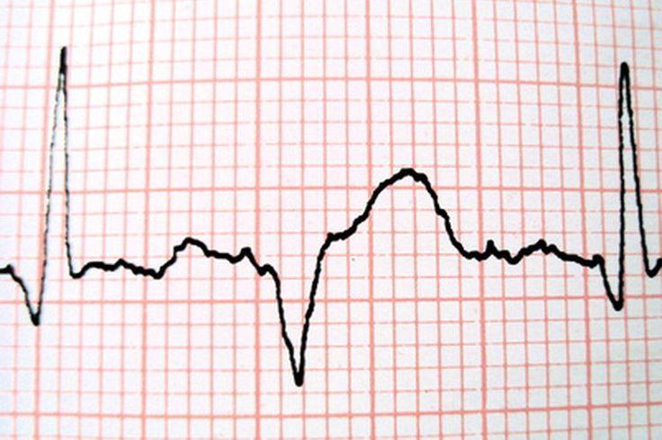 ¿Cómo ayuda el sistema cardiovascular a mantener la homeostasis? | Muy Fitness