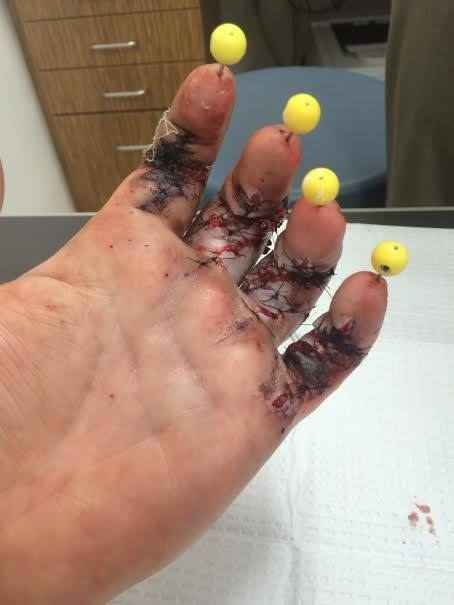Warning: Graphic photos of his hand surgery below.