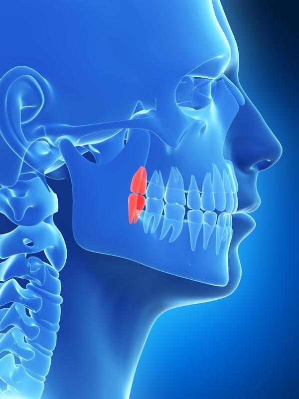 #Denti del #giudizio: cosa sono e quali sono le procedure di estrazione.