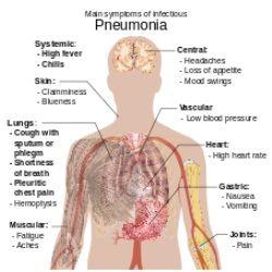 best 25 pneumonia treatment ideas on