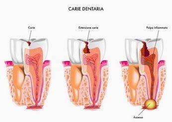 Durch ein fortschreitende #Karies kann eine #Zahnwurzelentzündung entstehen. Der #Zahnarzt kann diese Zahnwurzelentzündung durch eine #Wurzelbehandlung therapieren.