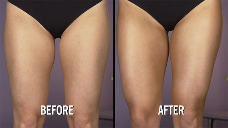 How to Contour Your Legs: Want sexy, toned legs this summer? This contouring trick can give you the look you want without going to the gym.