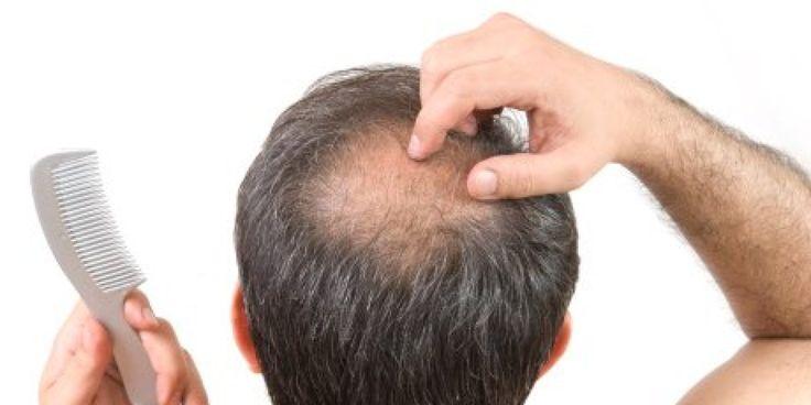 hair loss http://keepyourhair.co.pl/ #KeepYourHair