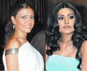 Top 10 Bollywood Celebrity Plastic Surgery Before and After –