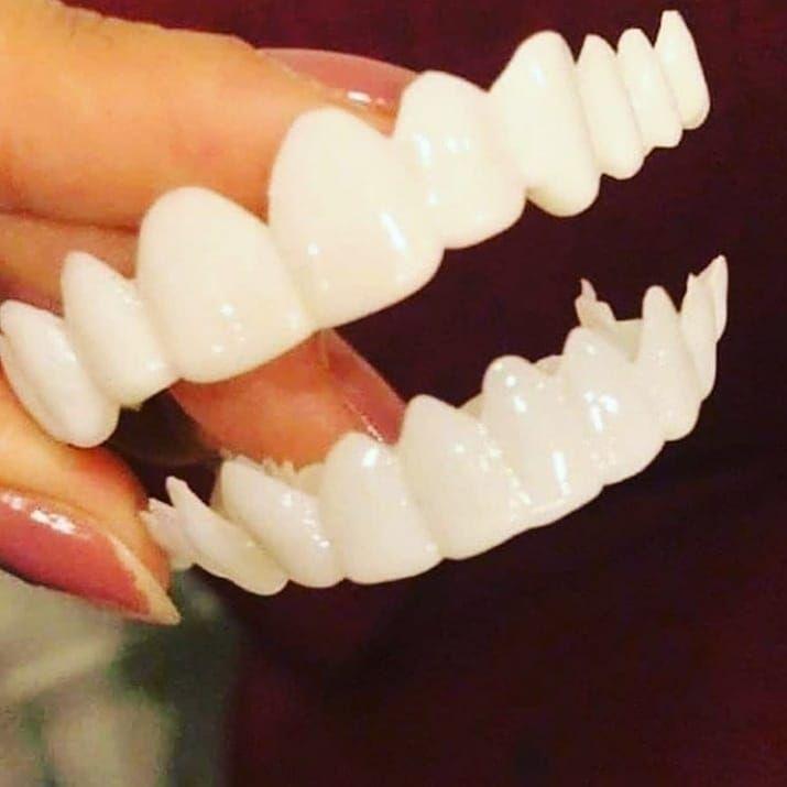 تركيبة الفينير المتحركة سناب سمايل بأسعار مغرية 1 بدون تحضير الاسنان 2 بدون تصغير وبرود الاسنان 3 تصليح شكل الاسنان الغير منتظمة 4 إغلاق كامل Dentes