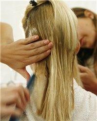 Alopecia: ¿se puede ganar y recuperar pelo?