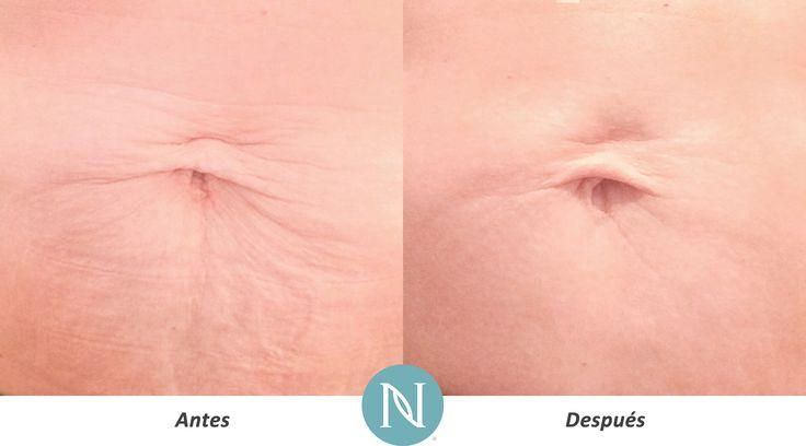 Resultados reales con de la crema corporal de Nerium. Una imagen dice más que mil palabras, ¡y esta imagen dice que la Crema Anti-Edad, Fórmula NeriumAD sí funciona!