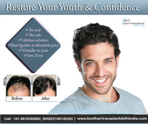 Best Hair Transplant Surgeon Delhi India: Hair Restoration Post-Surgery Instructions - Best ...