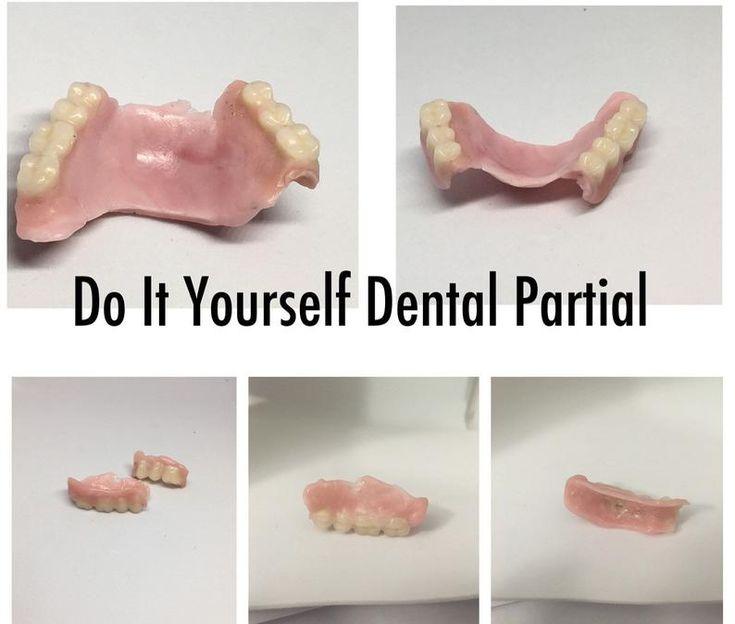 Diy kit denture resin teeth upper lower best denture kit
