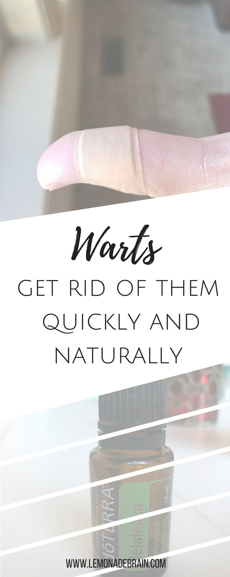Warts: get rid of them quickly, naturally and painlessly So, every so often I become a witch and what I mean by that is, I suddenly develop a wart on one of my fingers or the bottom of my feet. And. They. HURT! Warts are the worst. Not to mention,