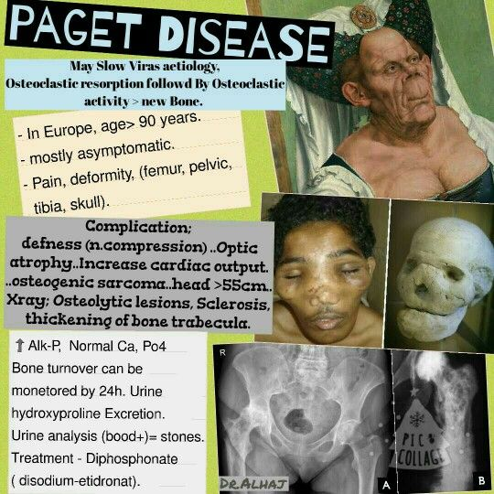 65 Best Pagets Disease Images On Pinterest  Radiology -8830