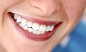 Groupon - Dental-Implant Procedure with Porcelain Crown for One, Two, or Three Teeth at Smile Arts of NY (Up to 53% Off) in Midtown South Central. Groupon deal price: $1,749