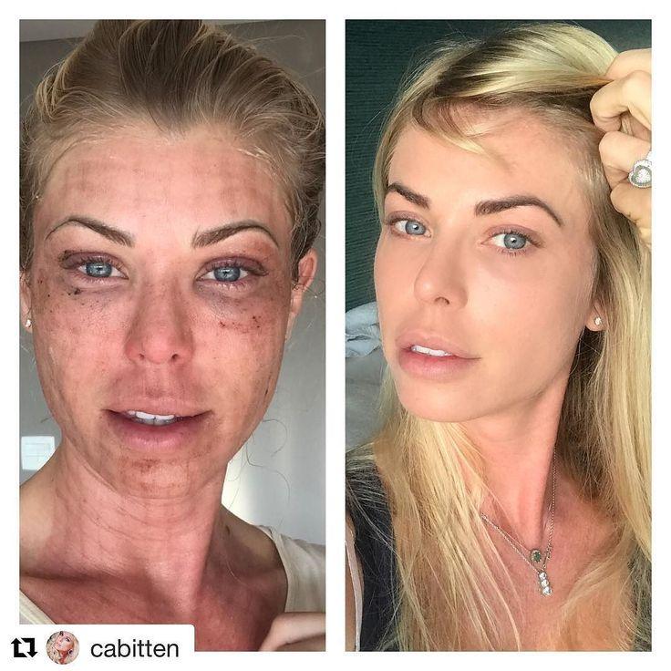 Como falei hoje do laser de CO2 segue o depoimento da linda Carol Bittencourt que se rendeu às maravilhas do tratamento! Nem tanta maravilha assim nas primeiras semanas né!  Mas evoluiu com um excelente resultado!!  Pele novinha  em folha! #laserco2 #rejuvenescimento #estetica #dermatologia #tratamentosavançados #pelebemcuidada #beleza #estetica  #Repost @cabitten (@get_repost)  Tomei coragem e estou fazendo hj o post sobre laser de CO2. Esta é a minha foto do primeiro dia e hj levantei a…