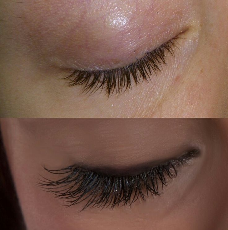 Eyelash Extension before and after | Eyelash Extension ...