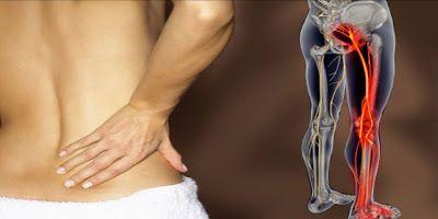 Κωνσταντίνος Χ. Δαβανέλος: Ισχιαλγία: πότε πρέπει να αντιμετωπισθεί χειρουργι...