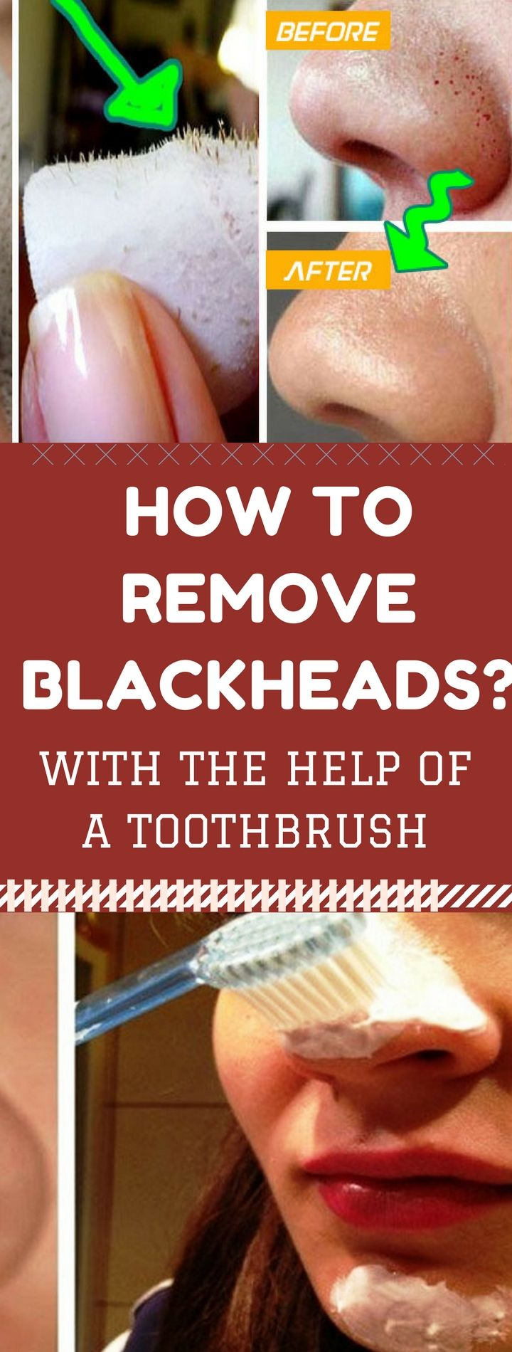 How to Remove Blackheads with the Help of a Toothbrushh ...