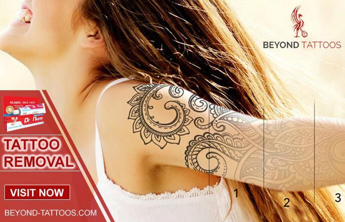 Tattoo Removal – We use advanced laser technology to remove tattoos. Laser tattoo removal is simple, safe, and produces fantastic results. The advance…