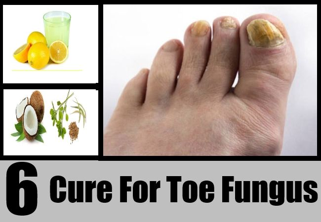 http://mkthlth2.digimkts.com  Finally A CURE!!  toe fungus pedicure  6 Cure For Toe Fungus