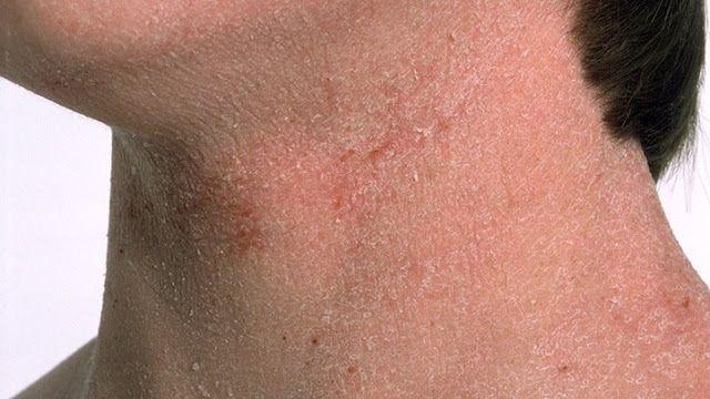 facial hair of loss Causes