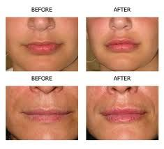 Lip augmentation in Utah offered by Dr. John B. Bitner, a Salt Lake City area facial plastic surgeon. Details on lip implants.Clck on the image to  know more...............