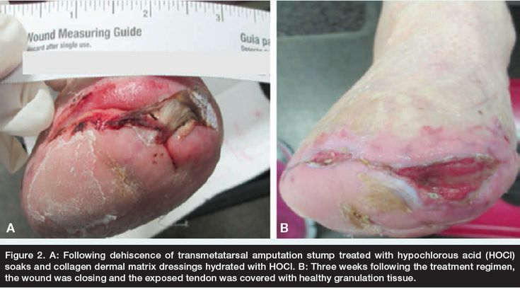 A look at the various uses of hypochlorous acid in wound care