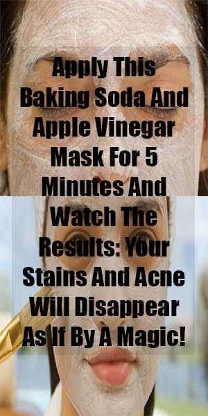 Apply This Baking Soda And Apple Vinegar Mask For 5 Minutes And Watch The Results: Your Stains And Acne Will Disappear As If By A Magic! | Healthy Life Fusion