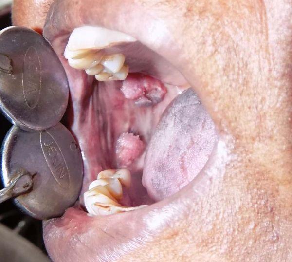 Squamous Papilloma of buccal mucosa.
