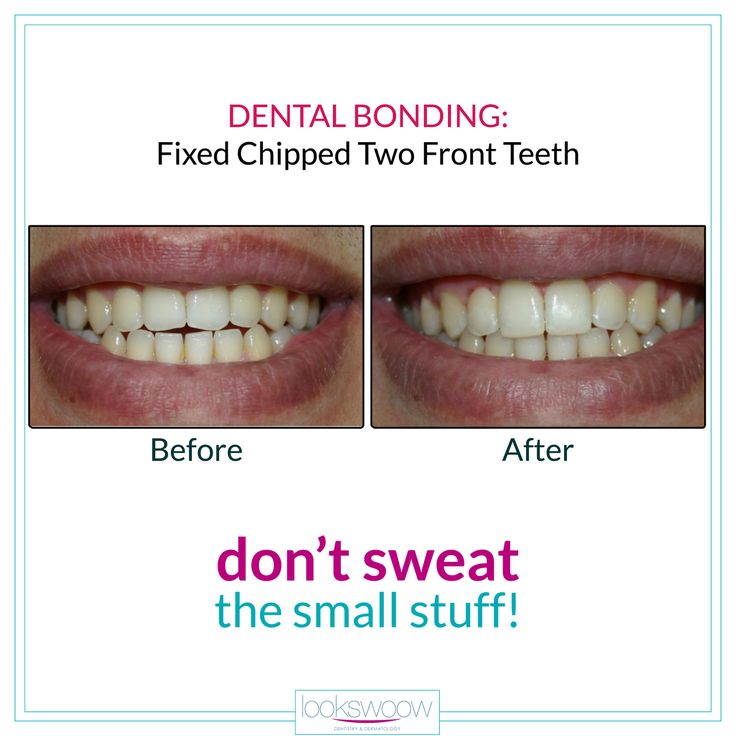 Don't stress over small chips and cracks in that smile. With dental bonding these imperfections can easily be concealed with stunning results. Beam brighter call 04 4487016 today!  #Lookswoow #dentalbonding #SmileMakeover #cosmeticdentistry #hollywoodsmile #beforeandafter