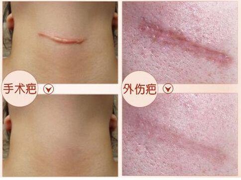 face care acne scar removal cream Acne Spots skin care treatment face cream stretch marks burns scalds scar remove