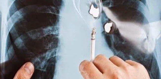 Wow!!! Ternyata Cara Ini Ampuh Untuk Menghilangkan Asap Rokok Di Paru-Paru, Perokok Wajib Baca Ini!!! - Banyak Cerita