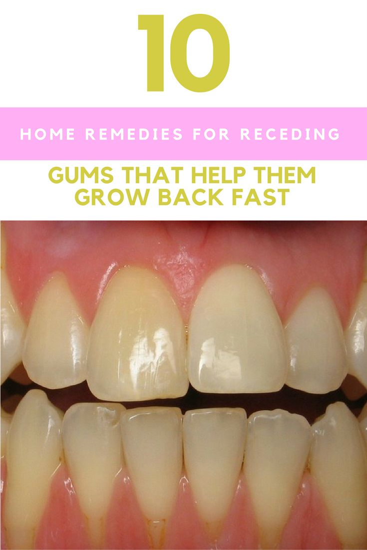 How To Treat Gum Infection Gingivitis Naturally