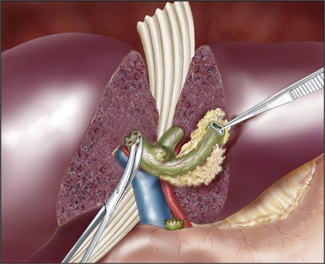 Qu'est-ce que c'est ? Cholangiocarcinome connue aussi par le cancer des canaux biliaires assez rare est une tumeur maligne qui prend naissance dans les cellules d'un canal biliaire extra- ou intrahépatiques. Le mot «maligne» signifie que la tumeur peut se propager (métastases) à d'autres parties du corps. Les cellules des canaux biliaires subissent parfois des …